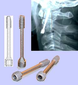 Double threaded screw with cannulas