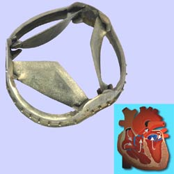Artificial heart valve consisting of heart valve ring and three cusps.